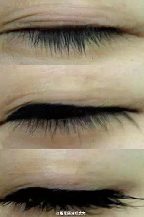 经常用双眼皮贴就能变成双眼皮?双眼皮贴的危害有哪些?双眼皮贴不粘怎么办