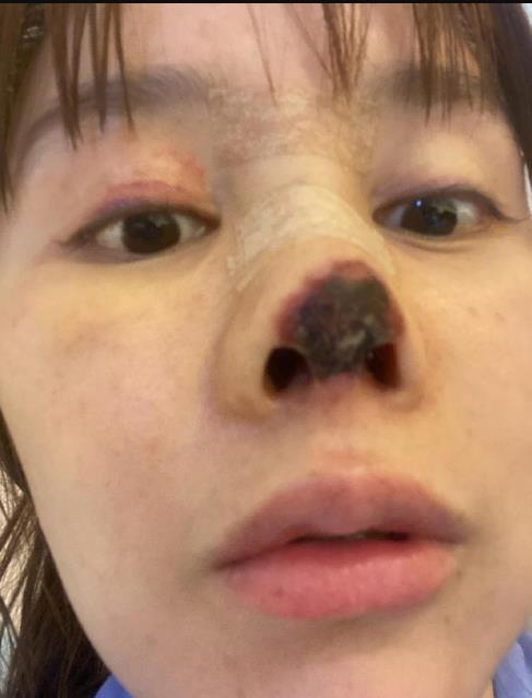 演员高溜整容失败鼻尖坏死:鼻尖已全发黑看着吓人