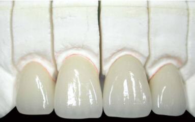 怎么矫正门牙牙缝大?小编分享三种方法