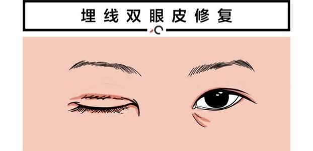 双眼皮埋线几天消肿?什么是埋线双眼皮?