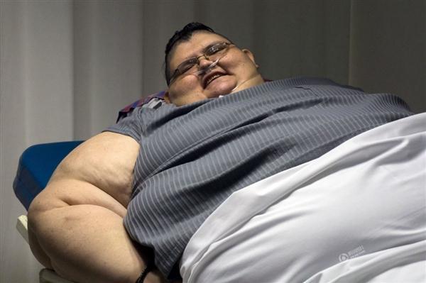 世界最胖男孩减重200斤,成功减到了82公斤!